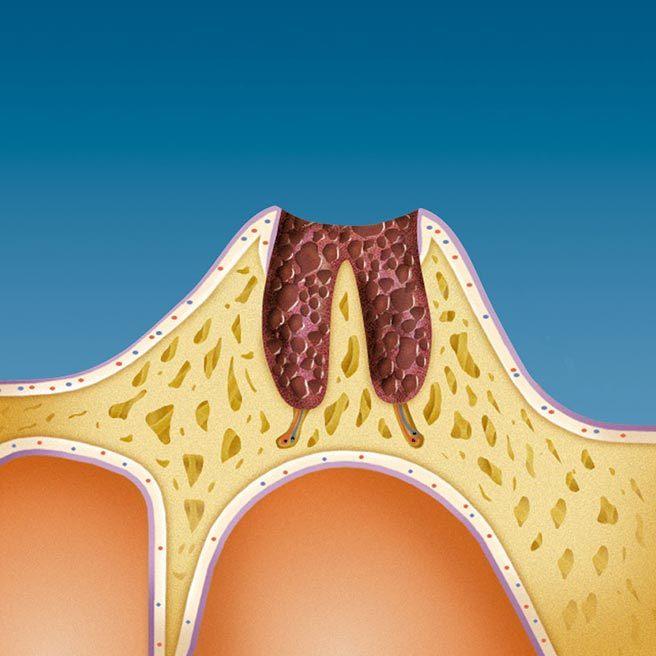Als Folgen des Zahnverlustes entstehen im Kiefer tiefe Wunden | Protefix